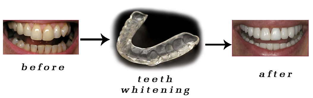 Teeth whitening/bleaching process and effect
