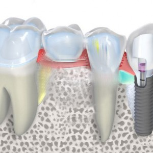 Adding dental implant