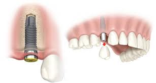 adding crown to dental implant