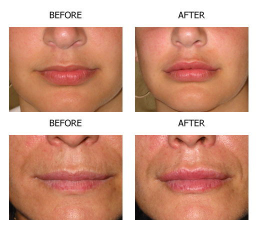 increese of lips with collagen