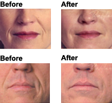 Removal of wrinkles before and after collagen therapy