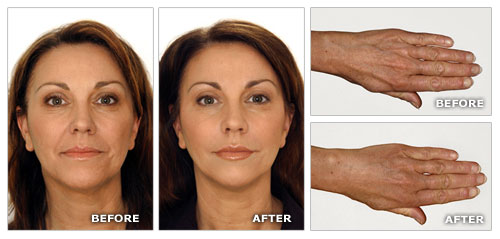 Skin lift Anti Ageing Program Before After