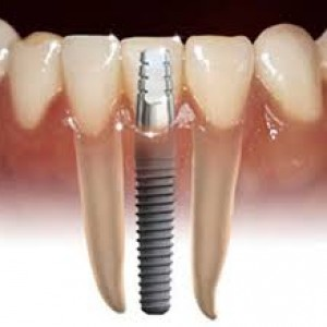 Tooth Implant eurodent