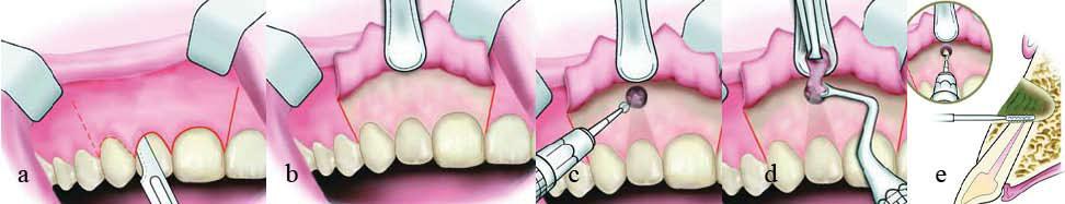Apikotomija/Resekcija korena zuba