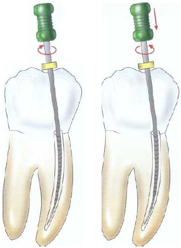 Endodoncija-lecenje
