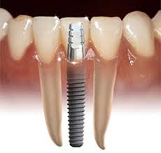 Zubni implant Eurodent